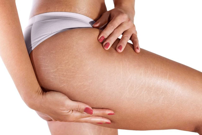 Image of £59 for one session of Carboxytherapy on a 10x20cm area of choice from London Body Centre, Beckenham