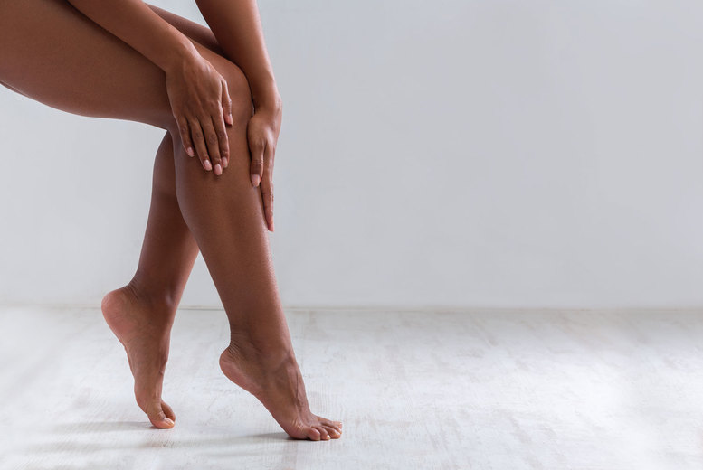 Image of £59 for a session of spider vein removal at Accurate Laser, Holburn, £109 for two sessions or £159 for three sessions