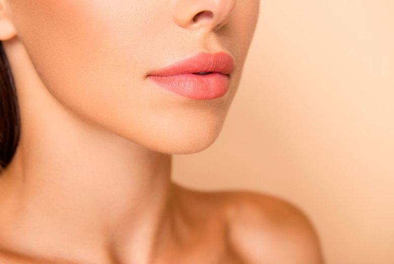 Image of £69 instead of £140 for a 0.5ml lip dermal filler treatment at GSN Pharm Aesthetics, Birmingham - save 51%