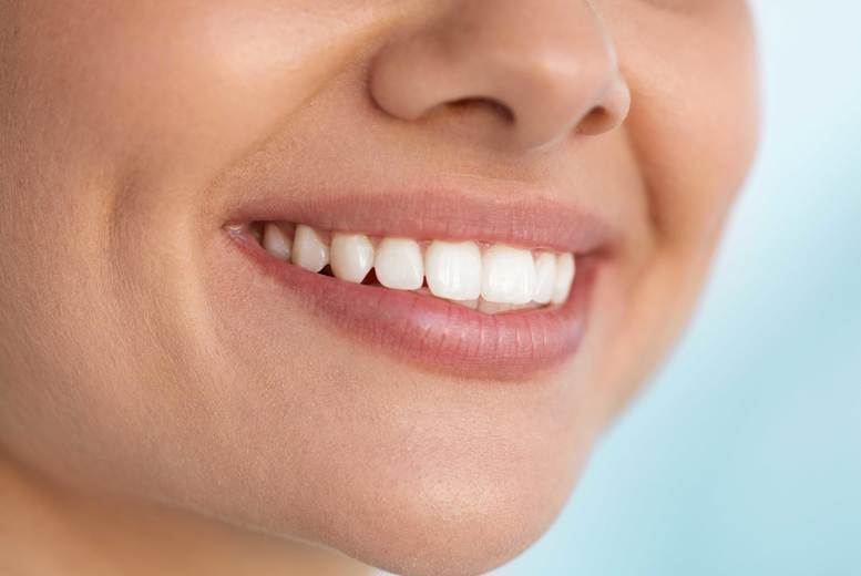Image of £69 instead of £350 for one Zoom teeth whitening session including a consultation at Imperial Smile Beauty, Romford - get a bright white smile and save 80%